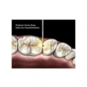 CARIES DETECTION SYSTEM