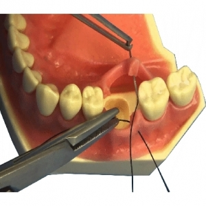 GINGIVAL SUTURING MODEL
